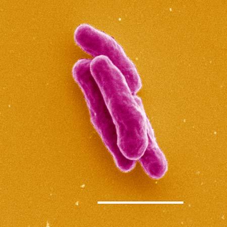 Mycobacterium2520tuberculosis - T�berk�loz (verem)